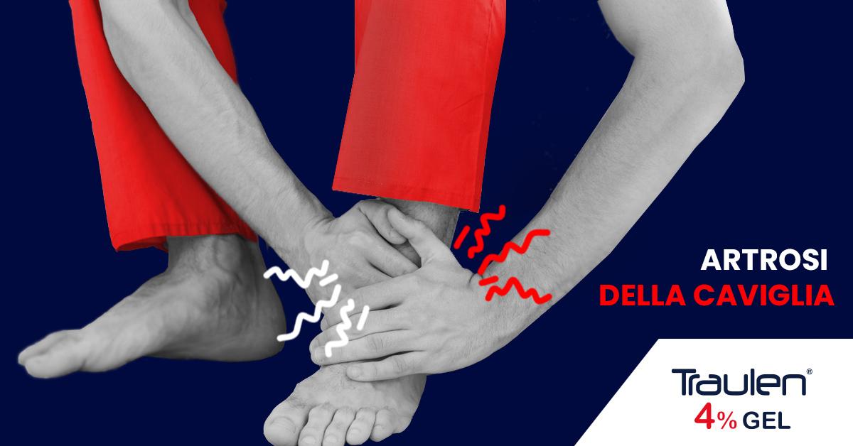 artrosi caviglia - Traulen